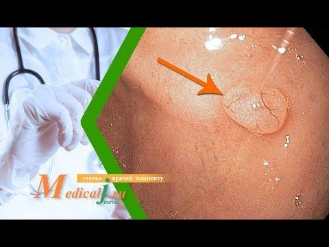 Как лечить полипы желудка