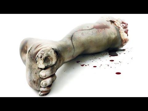 Гангрена ноги - признаки, причины, вопросы, лечение без
