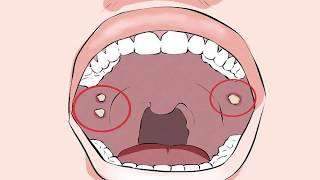 Não boca úlcera cicatrizar na vai
