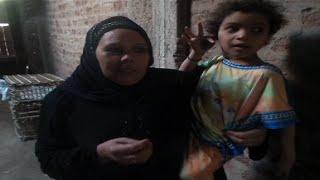 فيديو وصور| «رحمة» طفلة تسكنها مأساة.. خطأ طبي يحولها لـ«كائن زاحف»