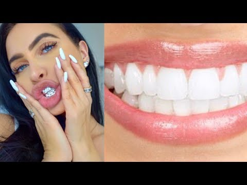 DIY REMOVE PLAQUE & TARTAR FROM TEETH AT HOME (100% WORKS) | How To NATURALLY Get Whitest Teeth Ever