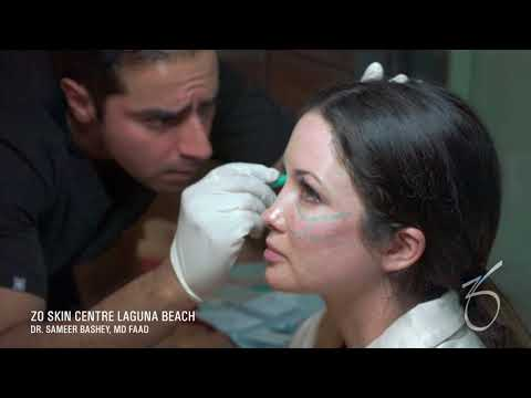 Injectables Live Demonstration at ZO Skin Centre Laguna Beach
