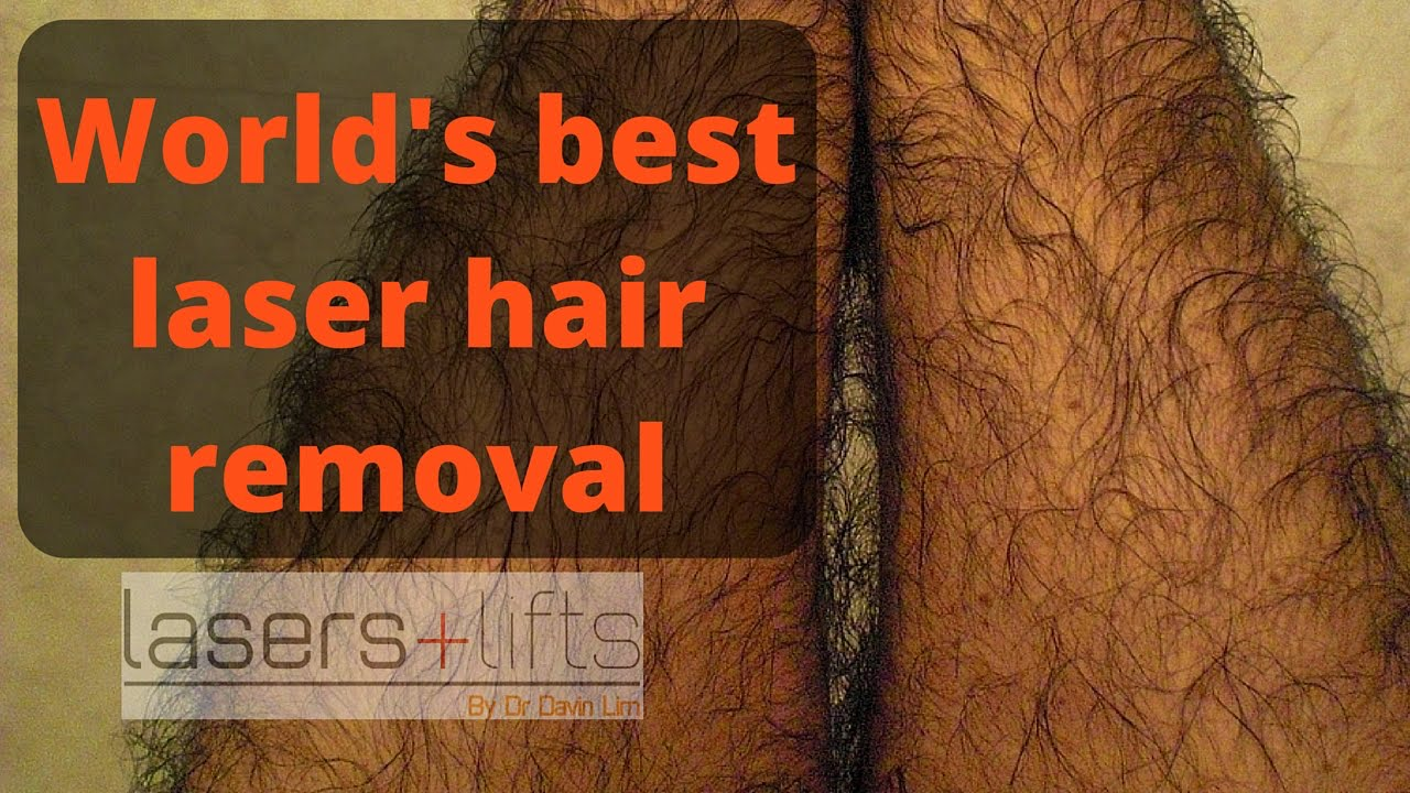 World S Best Hair Removal Laser Youtube