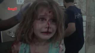 فيديو مؤثر.. طفلة سورية تنادي على أبيها والدماء تغطي وجهها