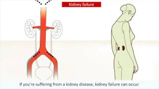 KIDNEY  CANCER-TYPES AND PREVENTIONS.