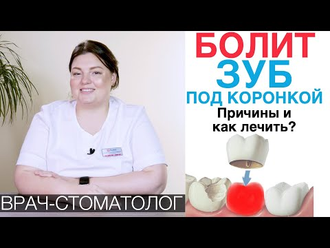 Болит зуб под зубной коронкой - какие причины и что делать? Воспаление зуба под коронкой