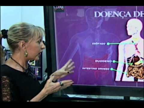 Estilo de Vida l Doença de Crohn:conheça as causas, sintomas e tratamentos Parte 2