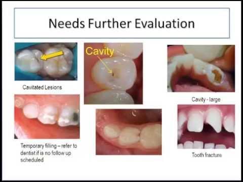 Online Dental Screening Training for School Nurses