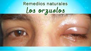 Caseros los ojos hinchados aliviar remedios para