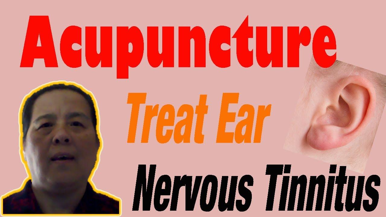 Acupuncture Treat Nervous Tinnitus - YouTube