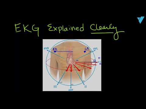 Introduction to EKG/ECG Interpretation Explained Clearly