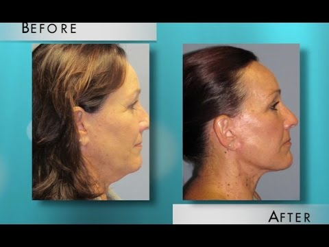 Video about Top 5 Characteristics of the Neck, Explains Orange County Plastic Surgeon