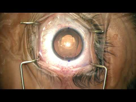 Solomon Eye Associates, Physicians & Surgeons Introduces: Visian Toric ICL