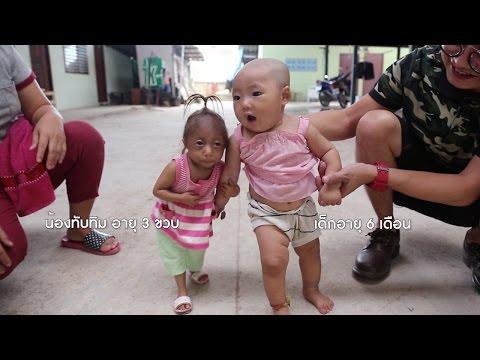 มนุษย์จิ๋ว ตัวเล็กที่สุดในประเทศไทย สูงแค่ 48 ซม.