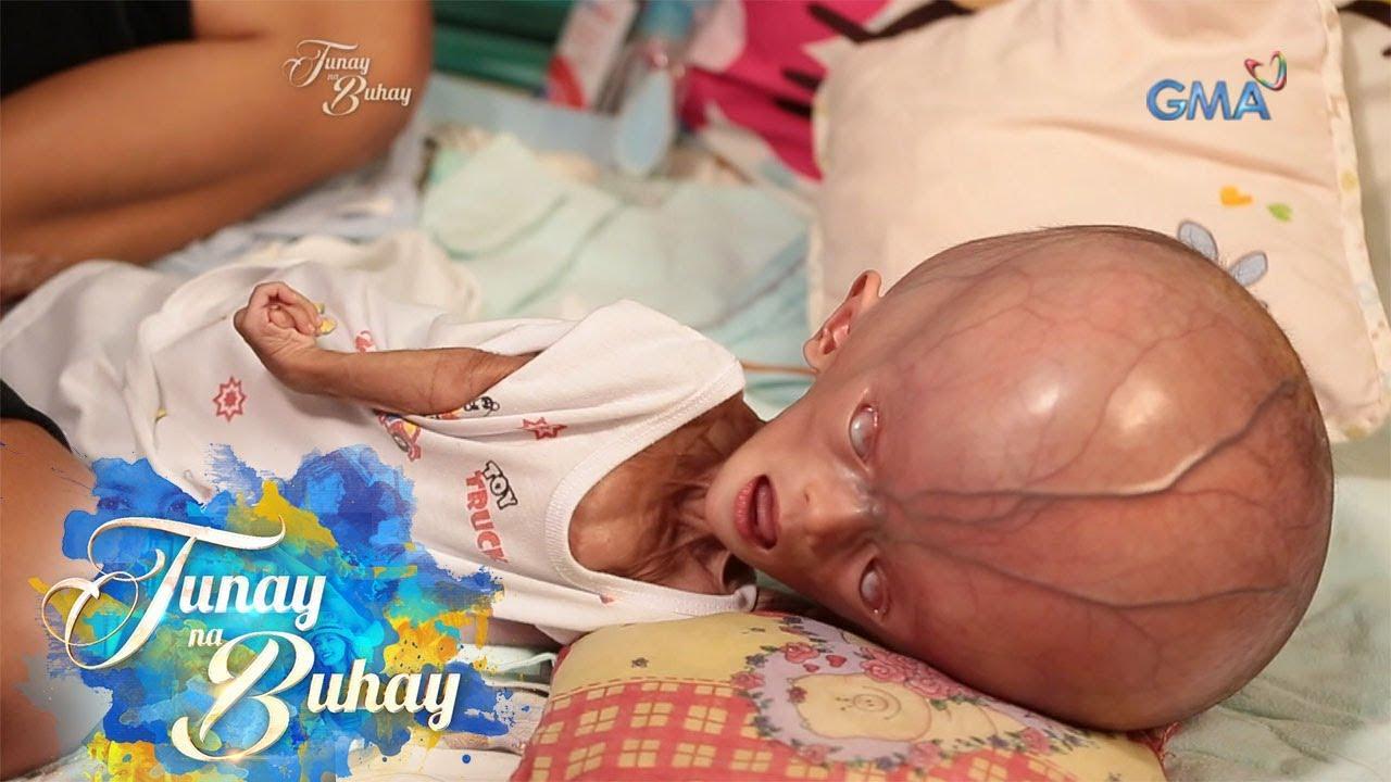Download Tunay na Buhay: Sanggol na may hydranencephaly, paano lumalaban? (with English subtitles)