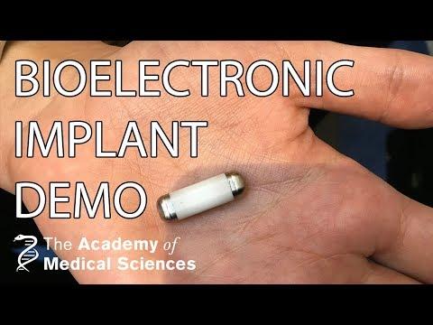 Bioelectronic implants demonstration | Professor Kevin Tracey