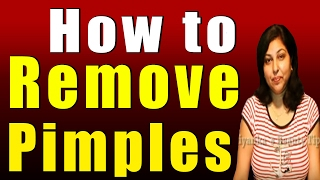 How to Remove Pimples Thumbnail