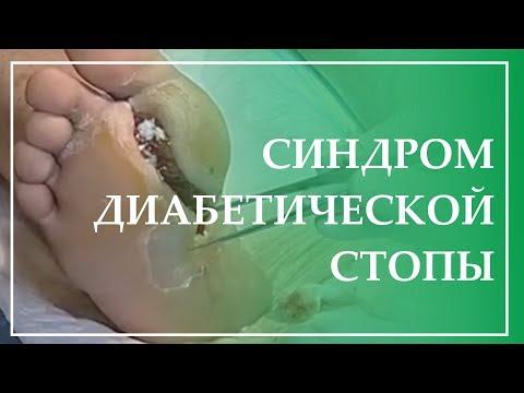 Синдром диабетической стопы. Биологическая медицина в лечении некробиотических трофических язв