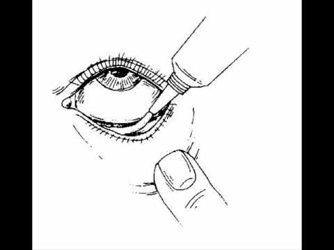your eyelids glue together Adult