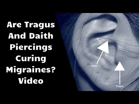 Are Tragus And Daith Piercings Curing Migraines? Video