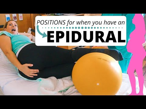 EPIDURAL | positions to speed things up!
