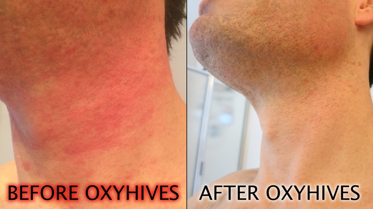 How To Get Rid Of Hives With The Oxyhives Hives Treatment Youtube