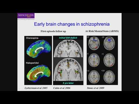 Neuroinflammation in Psychosis