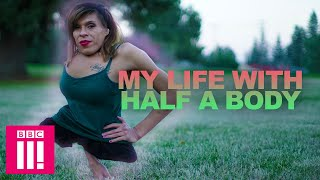 My Life With Half A Body: Living Differently