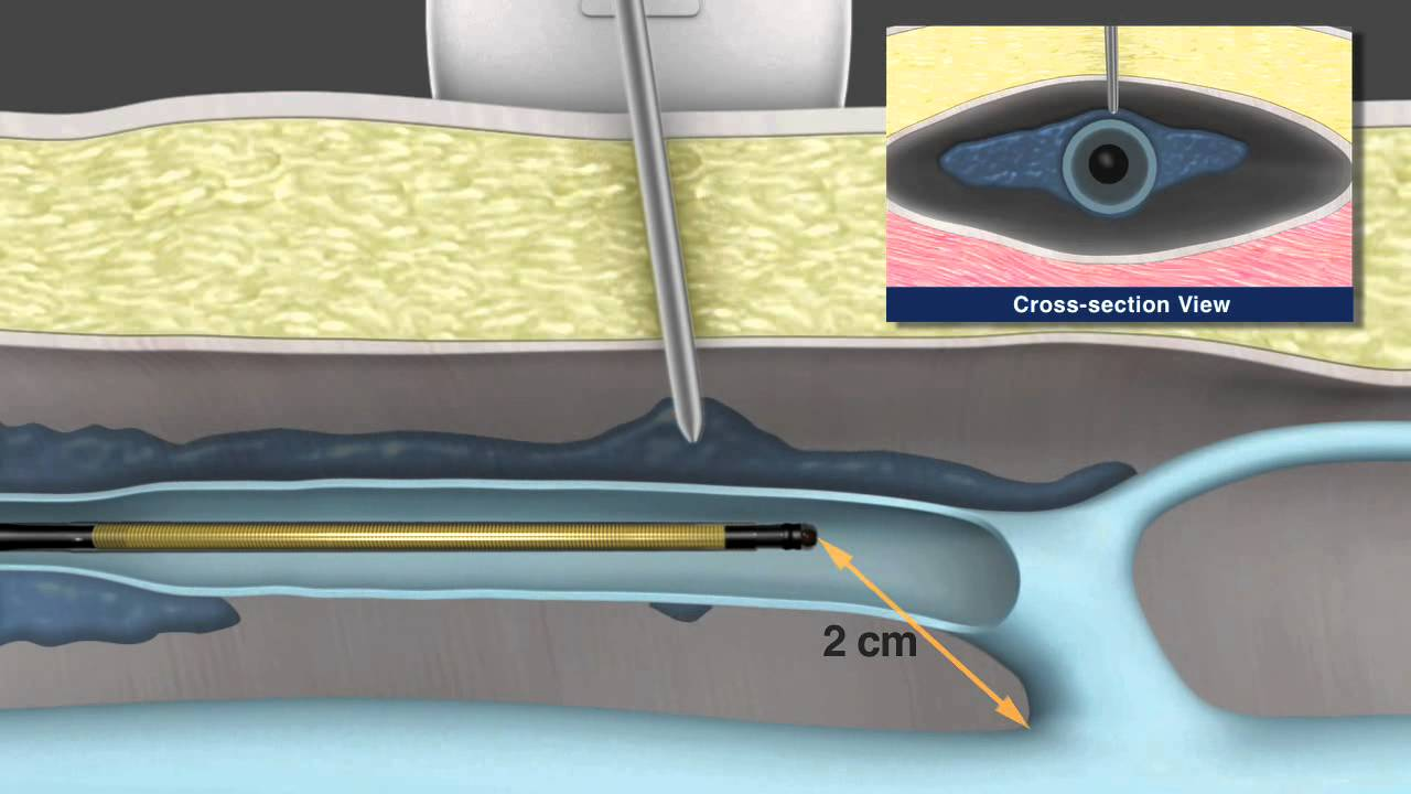 tratați varicose recenzii laser