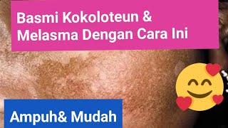 Pembahasan Soal UKMPPD Dermatovenerologi (Melasma, Dermatitis Seboroik, BCC, SCC, Sifilis, Gonore).