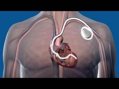 What is Cardiac Resynchronization Therapy CRT, and how does it work?