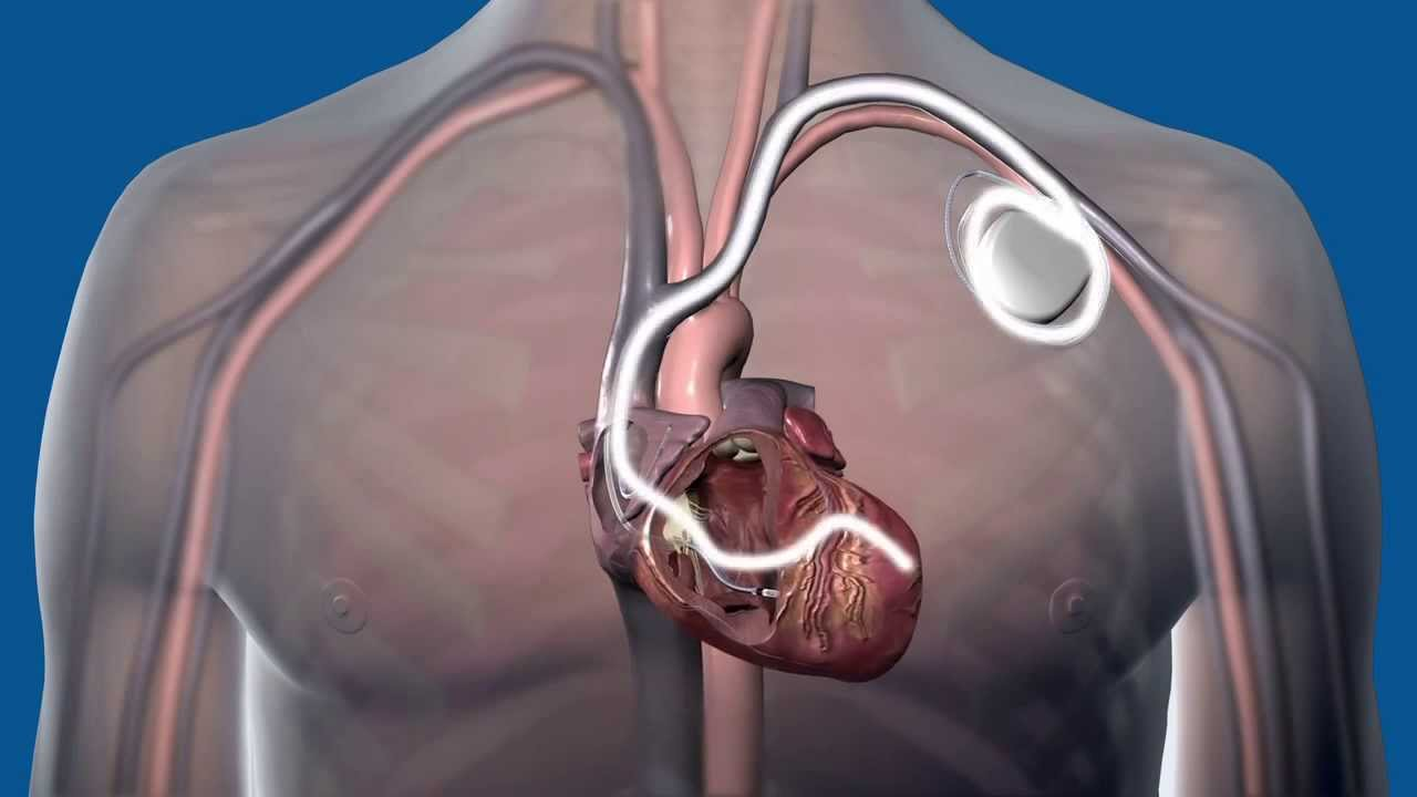 What is Cardiac Resynchronization Therapy CRT, and how does it work? -  YouTube