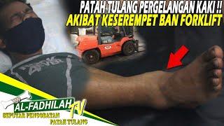 SHARING PENGALAMAN PATAH KAKI (FRACTURE).