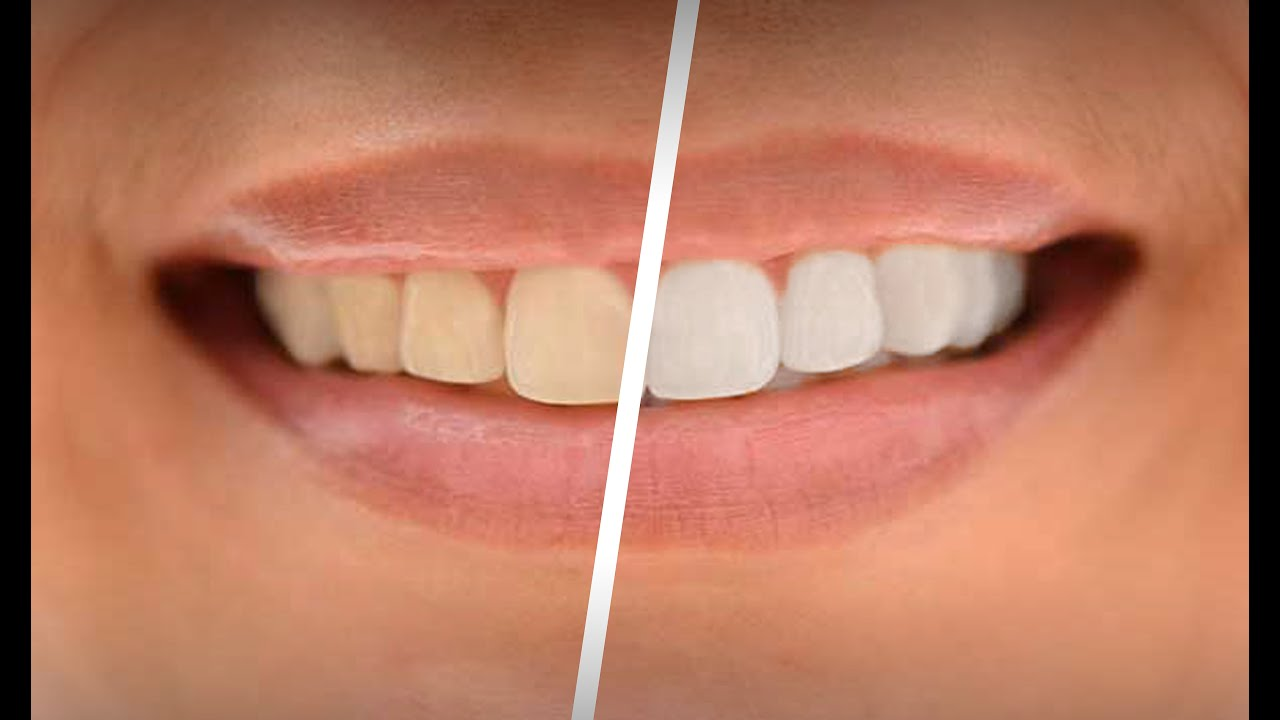 Whiten Teeth In Adobe Lightroom 6 Youtube