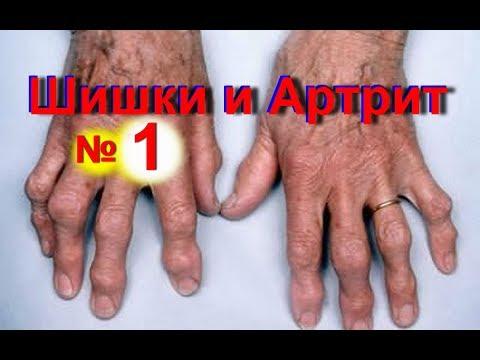 Артроз коленного сустава 1 степени - Подробная информация