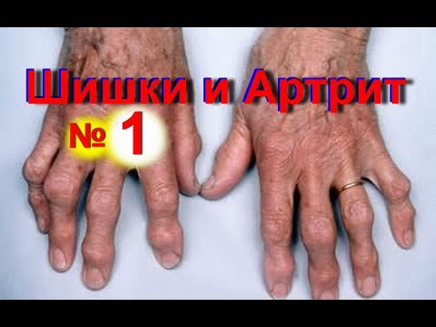 Растет и болит косточка на пальце руки