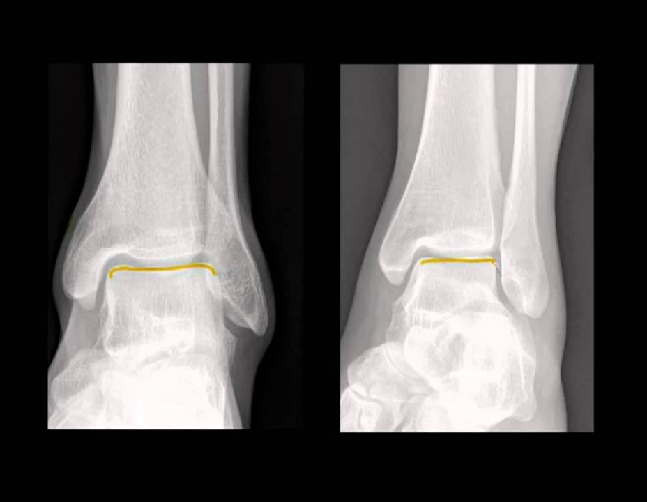 Part 2 Ankle Radiographs For Trauma4 Youtube