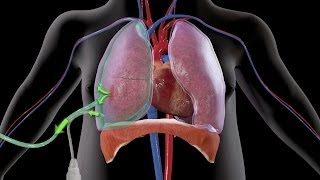 How Easy Treatment of Pneumothorax Could Have Been