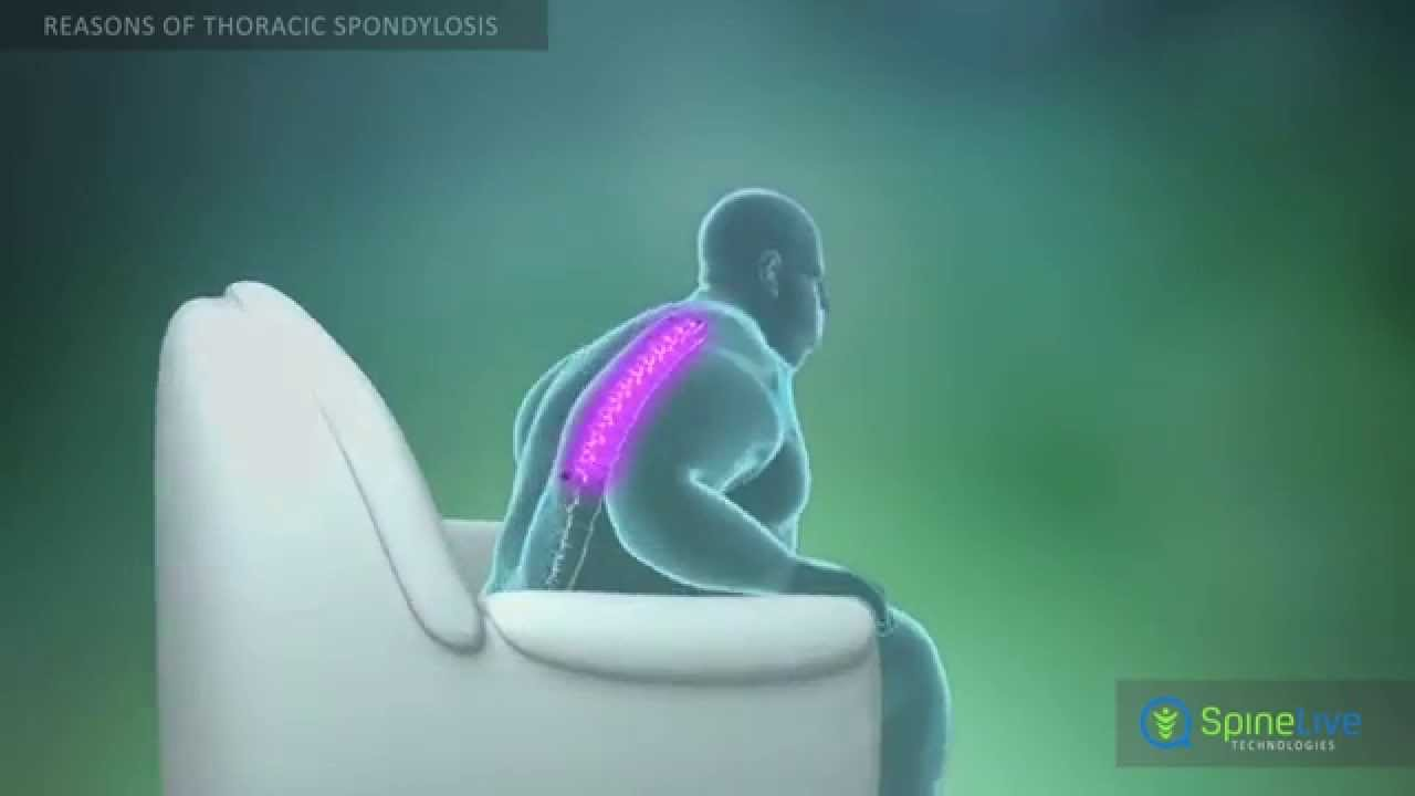 Spondylosis of the thoracic spine: symptoms and treatment 75