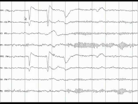 EEG Tutorial