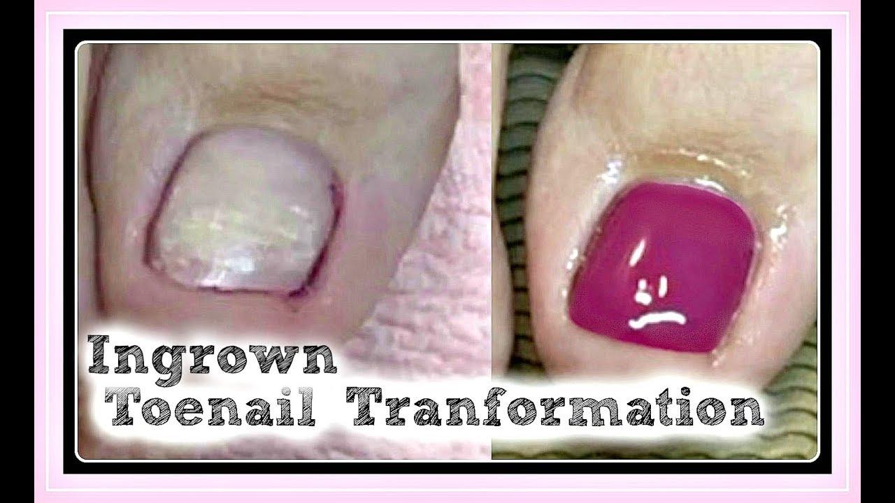 👣 Pedicure Tutorial and Ingrown Toenail Treatment Transformation ...