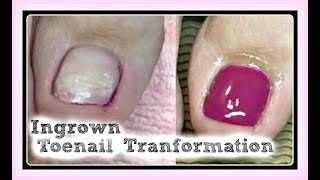 👣 Pedicure Tutorial and Ingrown Toenail Treatment Transformation Using Hard Gel ✔