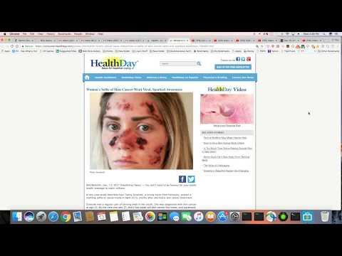 Women's Skin Cancer Selfie Beings Awareness Across Social Media