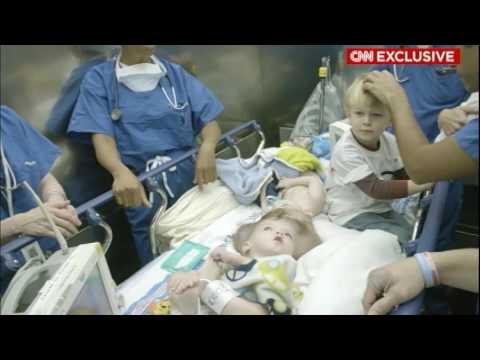 Cirurgia Para Separar Gêmeos Siameses Dura 27 Horas Nos EUA