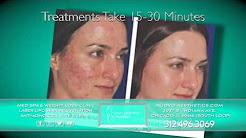 hqdefault - Acne Scar Treatment Chicago Il