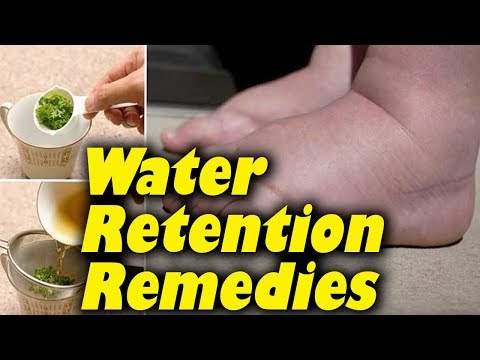 How to Get Rid of Water Retention 5 Safe Methods.