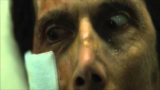 [Fan trailer]Pathology