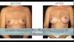 Best Breast Augmentation Surgeon in Chandler, Glendale, Mesa AZ