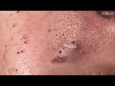 Top Blackheads Removal of The Month, Acne Treatment with Calm Music 2019