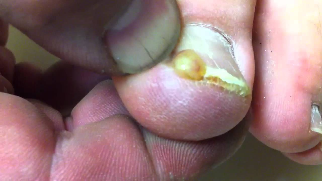 More yellow puss from my big toe - YouTube